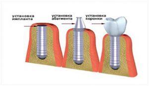импланты зубов виды и цены
